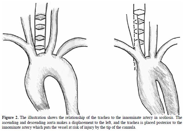 Tracheoinnominate artery fistula in a pediatric patient with ...